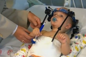 A toddler has undergone delicate surgery to reattach his head to his neck following a serious car accident.